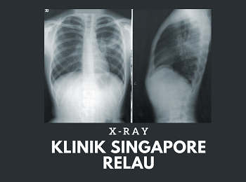 KLINIK SINGAPORE RELAU - CHEST X-RAY